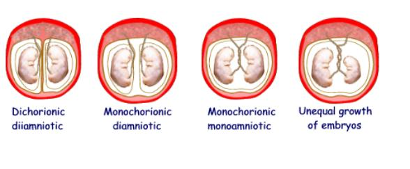 The Placenta & Twinning